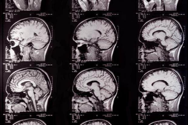 Roboty udające nietoperze mogą pomóc badać mózg